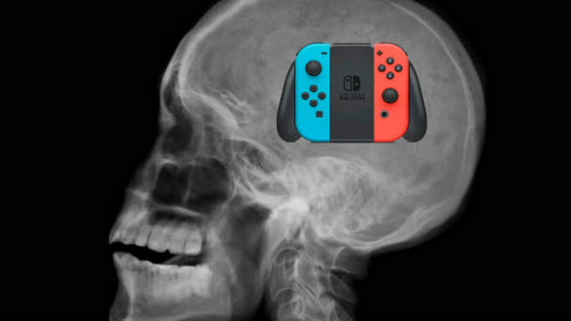 Here's an X-Ray of the Nintendo Switch's Guts